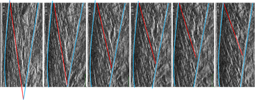 Ultrasound images of a muscle (medial gastrocnemius) isometric contraction. Aponeuroses are highlighted in blue and a fascicle in red.